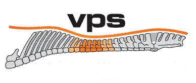 Barefoot-VPS-Systeem
